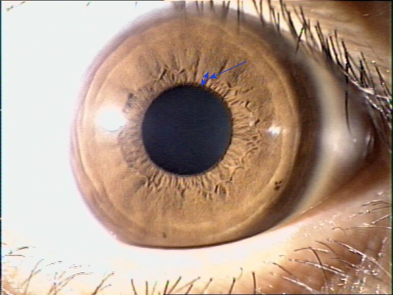 iridology pictures (9)