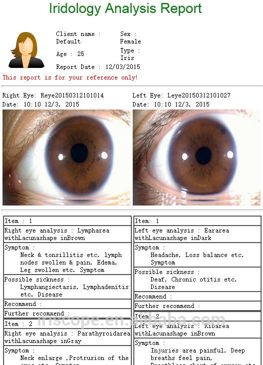 iridology reading report 6