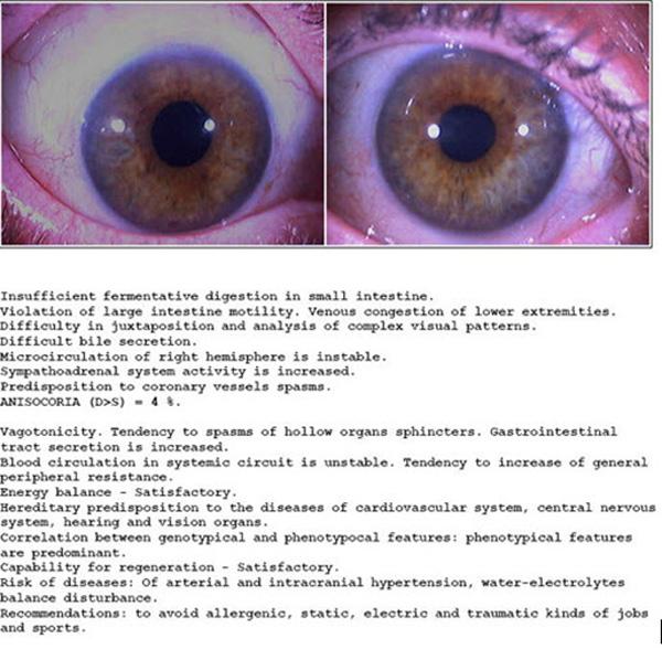 iridology reading report