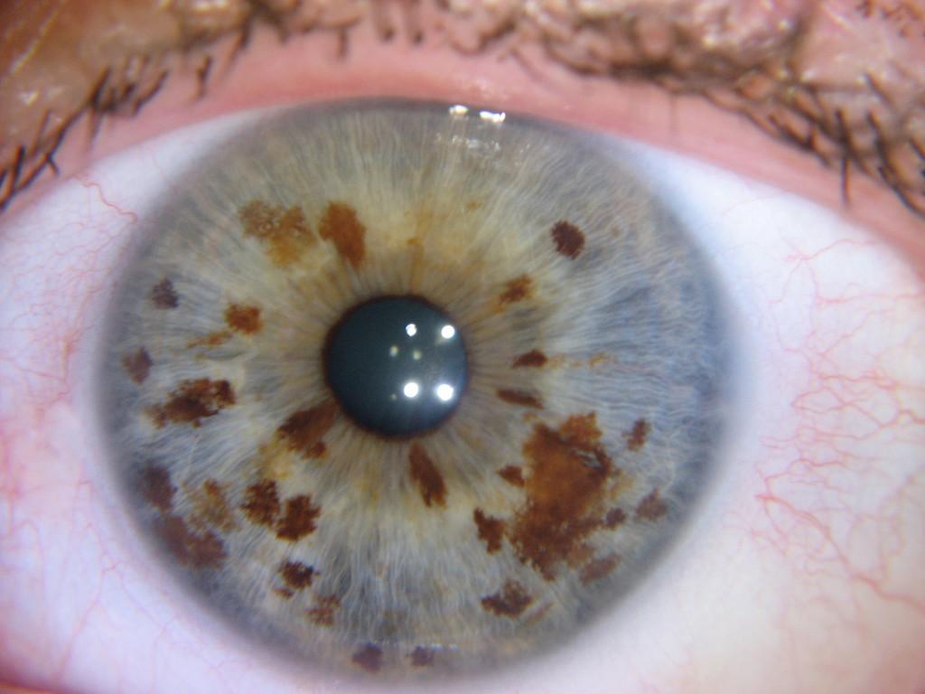 nerve rings iridology Examples