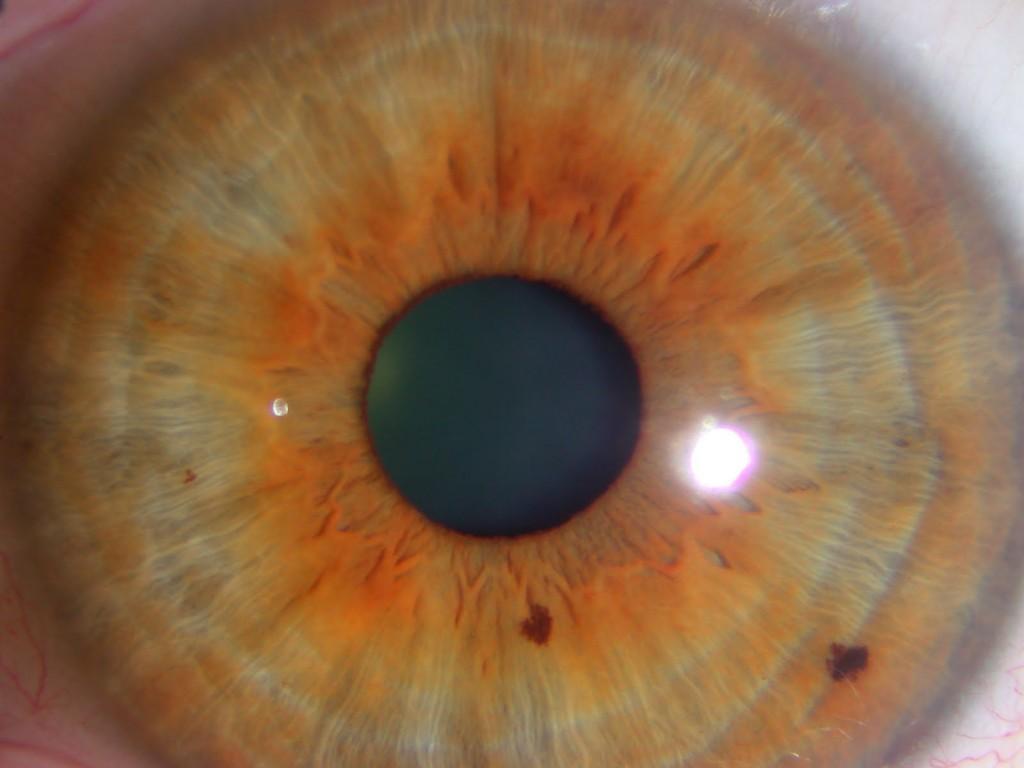 nerve rings iridology Examples 2