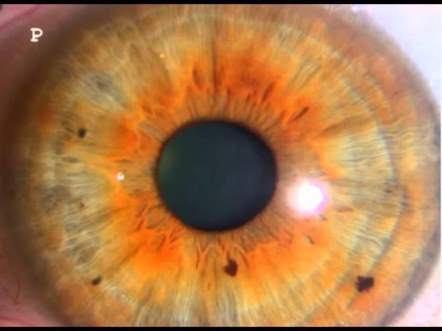 nerve rings iridology Examples 45
