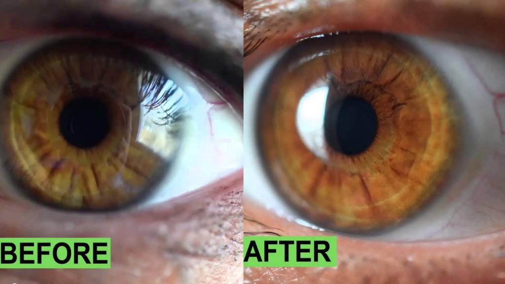 nerve rings iridology images
