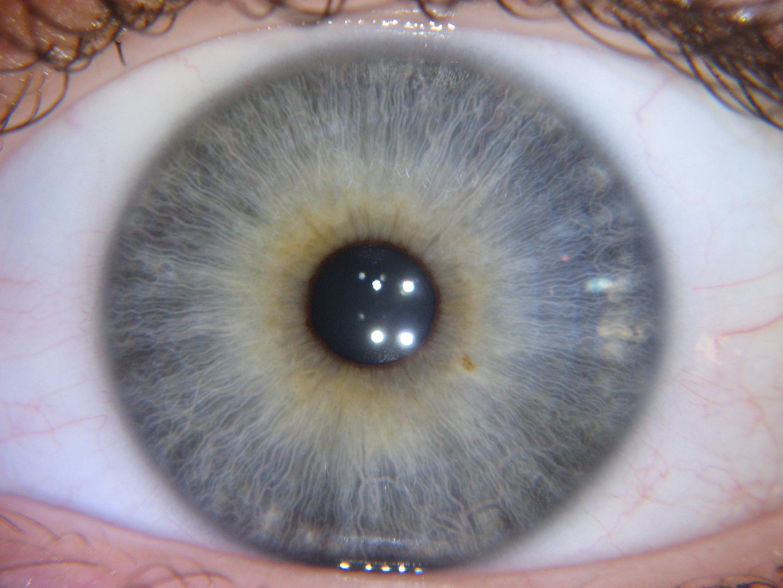 nerve rings iridology images 3