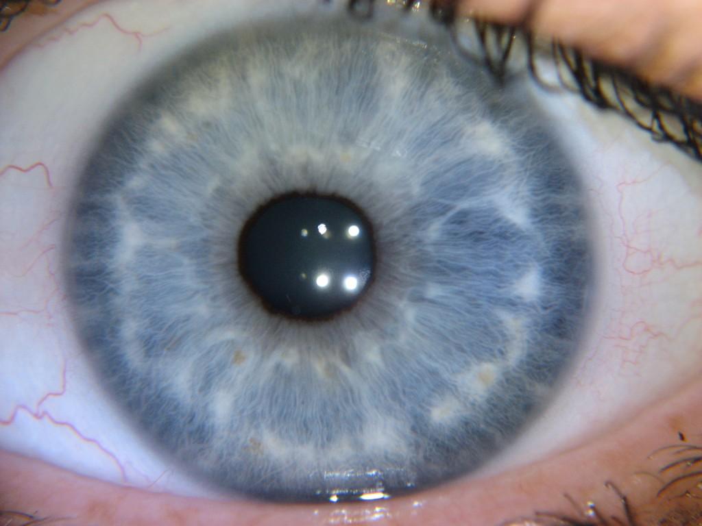 nerve rings iridology images 4