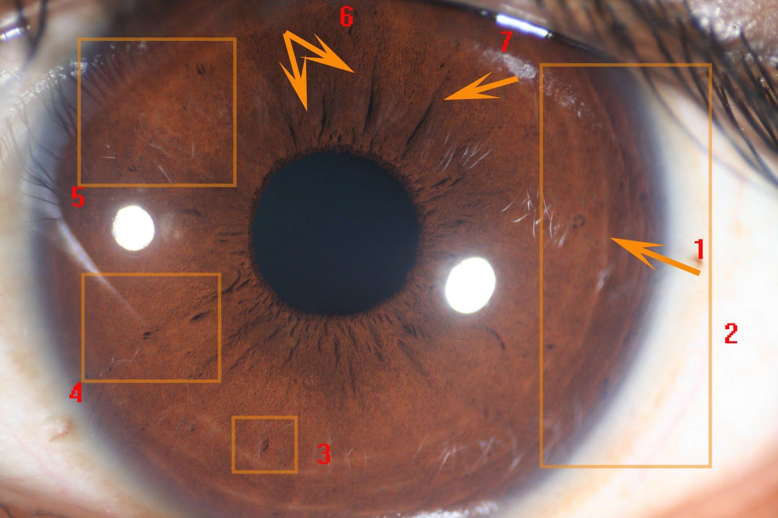 nerve rings iridology