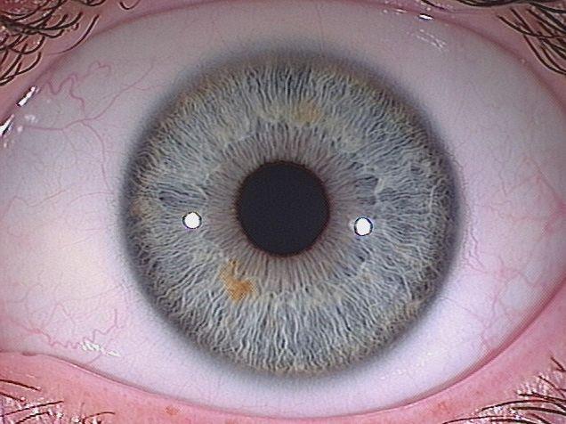 international iridology practitioners association