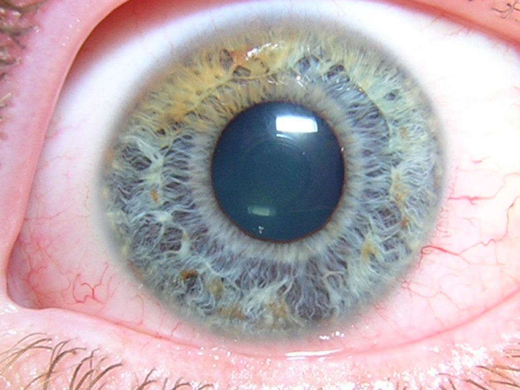 iridology brisbane 4