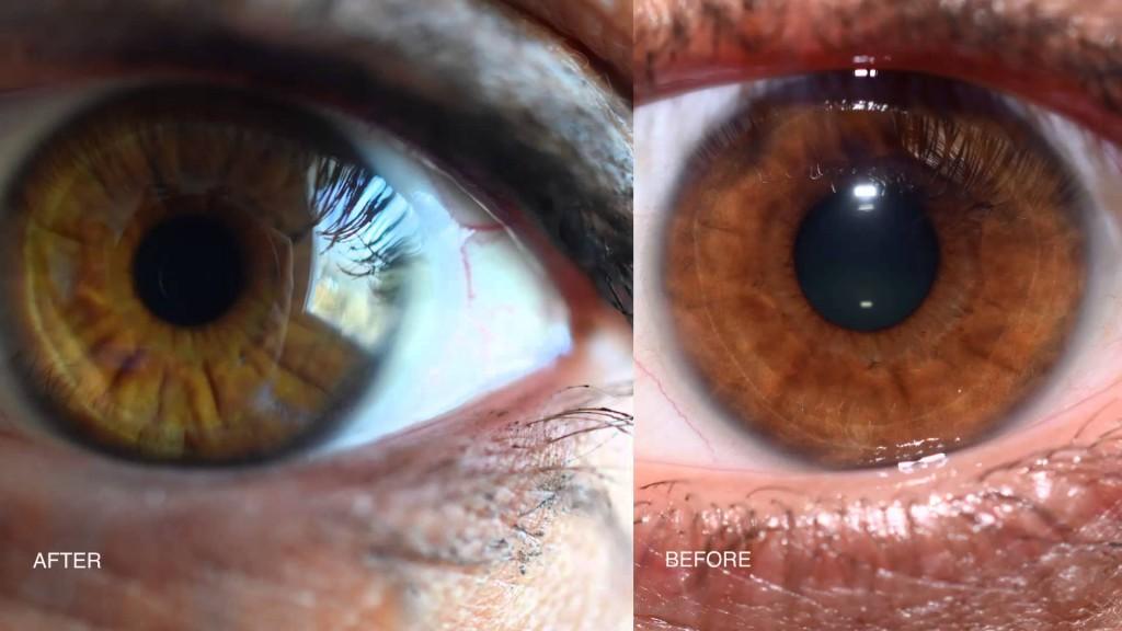 iridology eye color change 1
