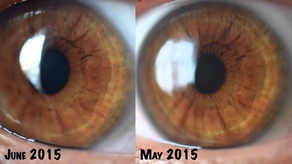 iridology eye color change 2
