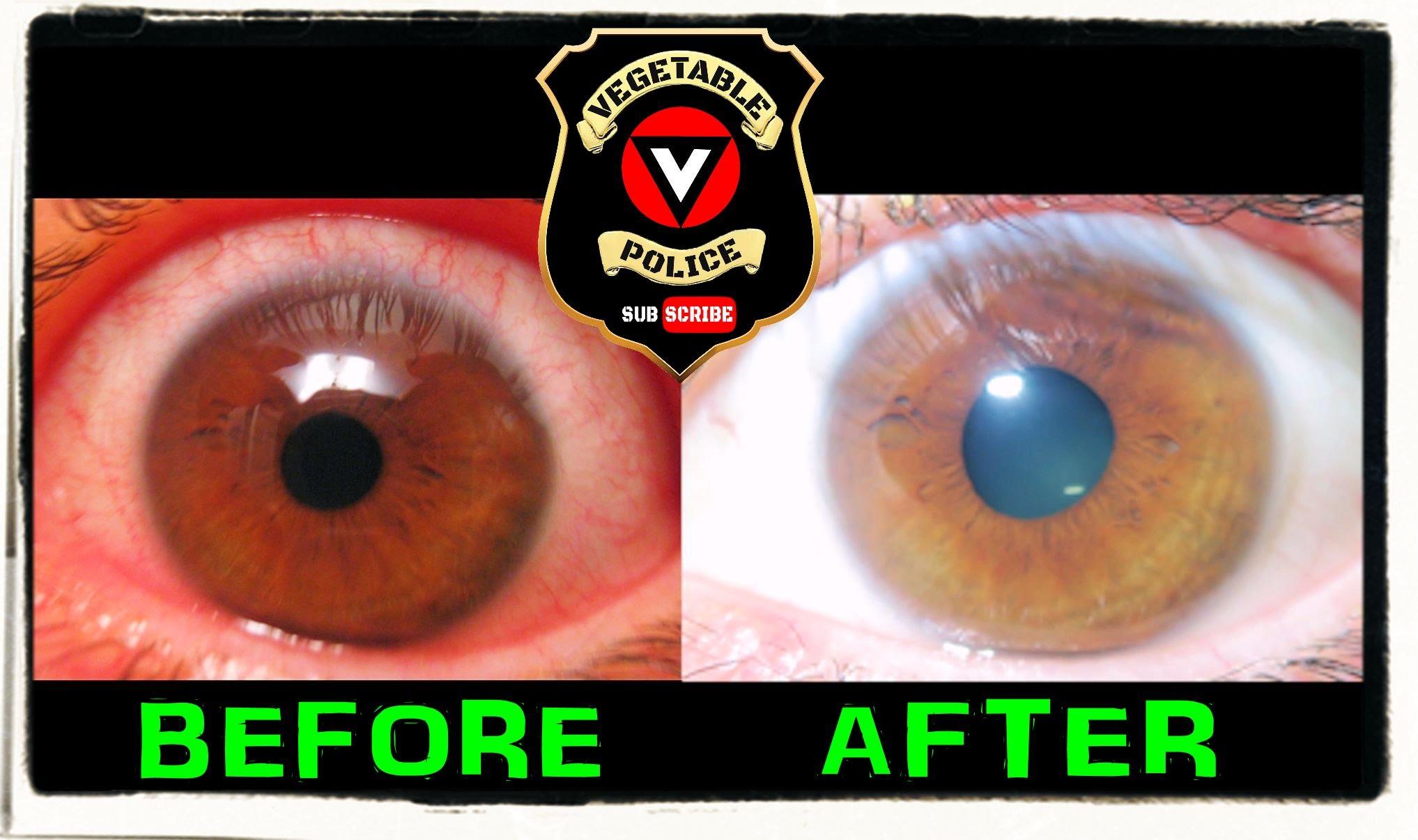 iridology eye color change 4