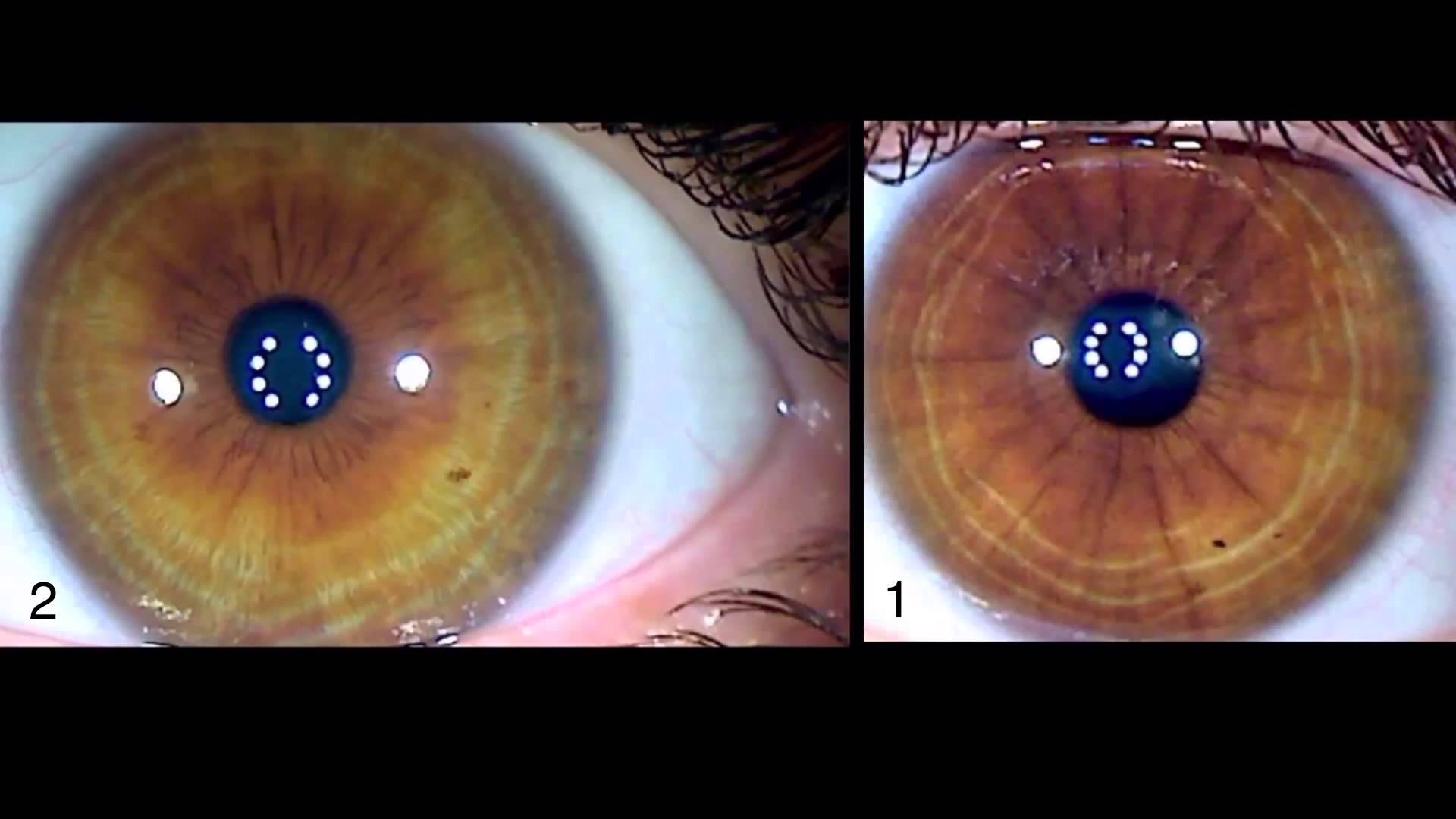 iridology eye color change 5