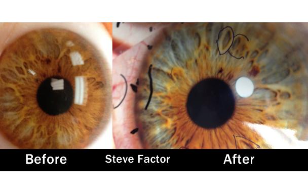 iridology eye color change