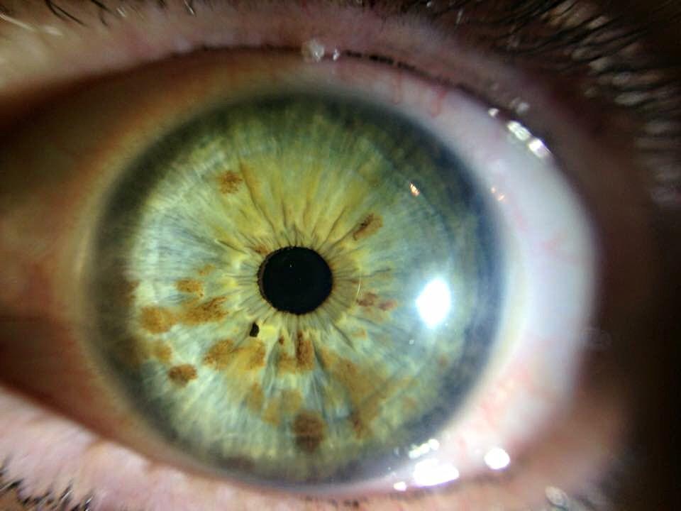 iridology green eyes