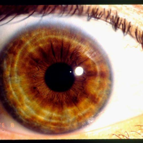 Black Ring Around Iris New Iridology Vibrant Health Wellness