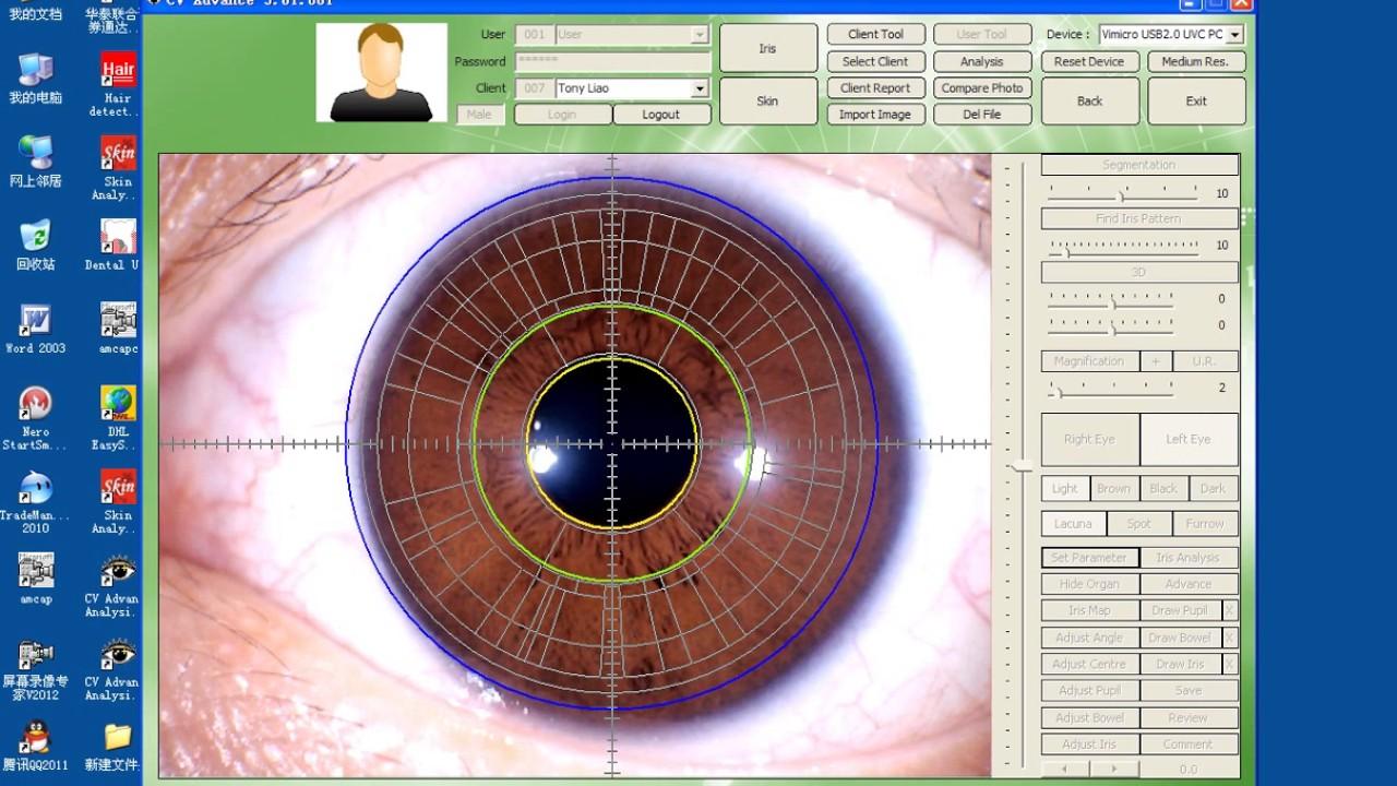 maikong iridology software 2