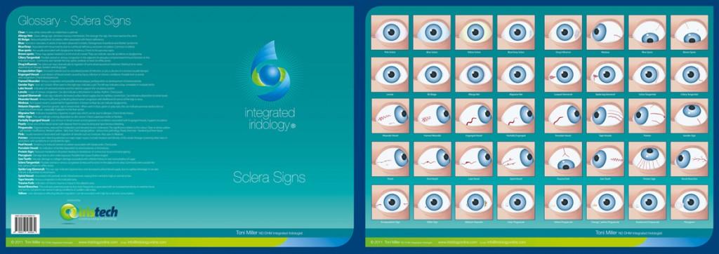 toni miller iridology 3