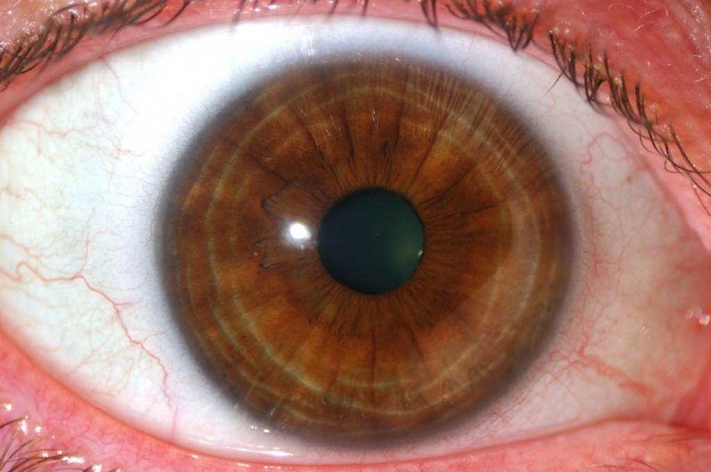 iridología (100)