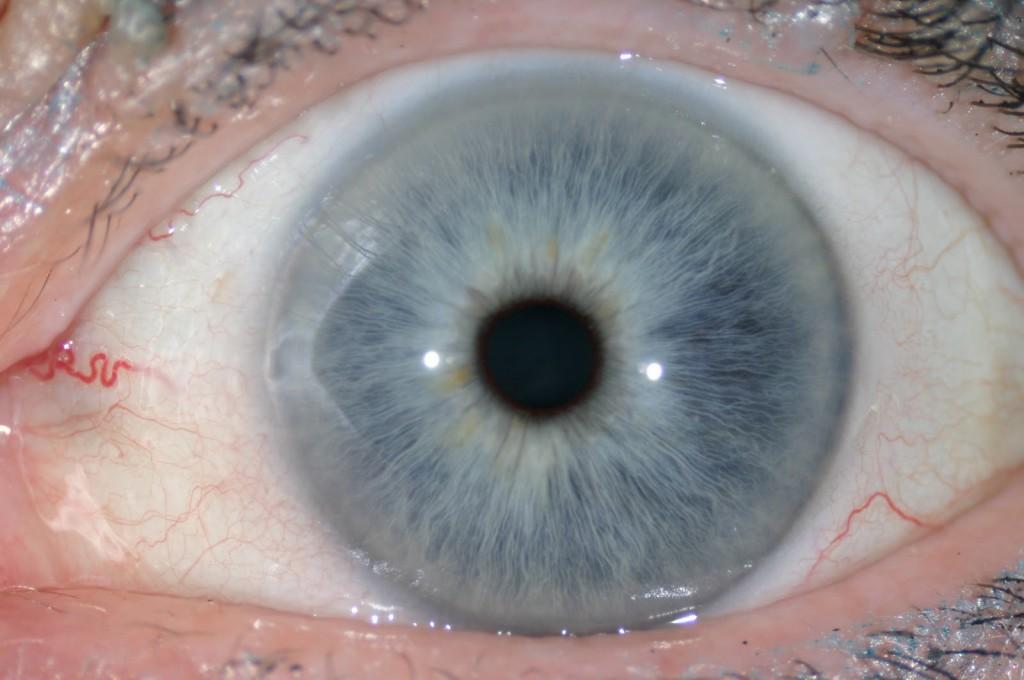 iridología (106)
