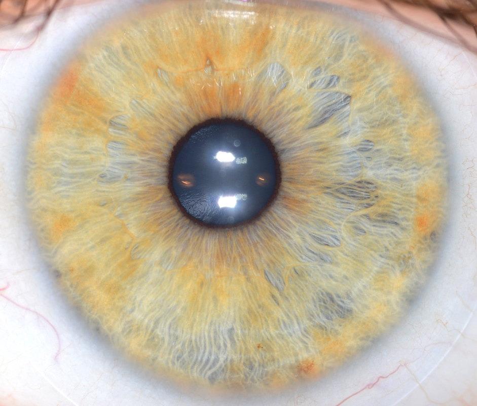 iridología (38)