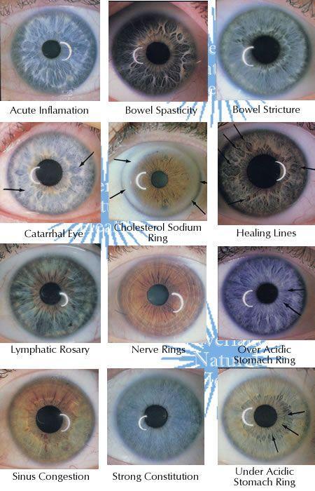 iridología (5)