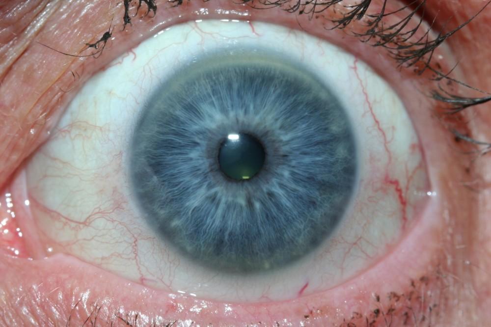 iridología (51)