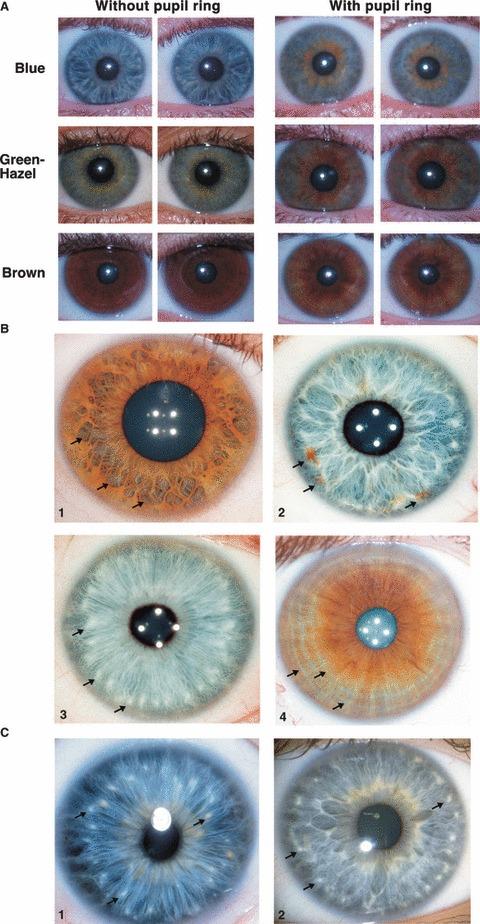 iridología (6)