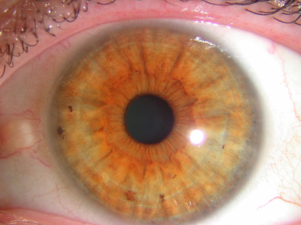 iridología (73)