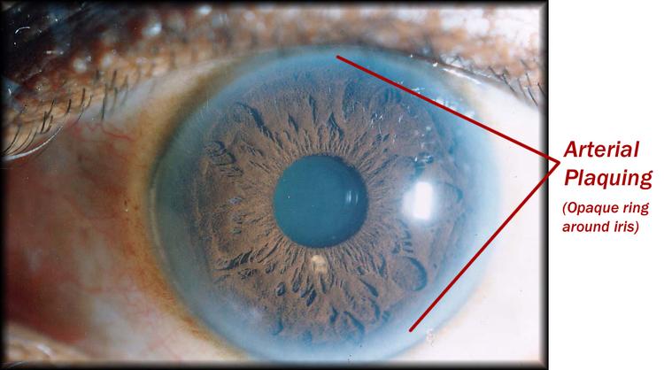 sclerology eye chart