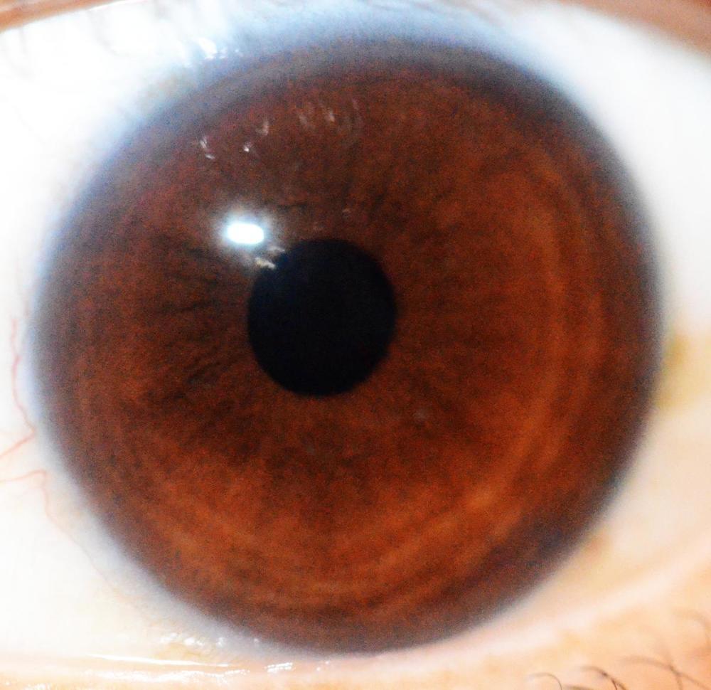 iridología (95)