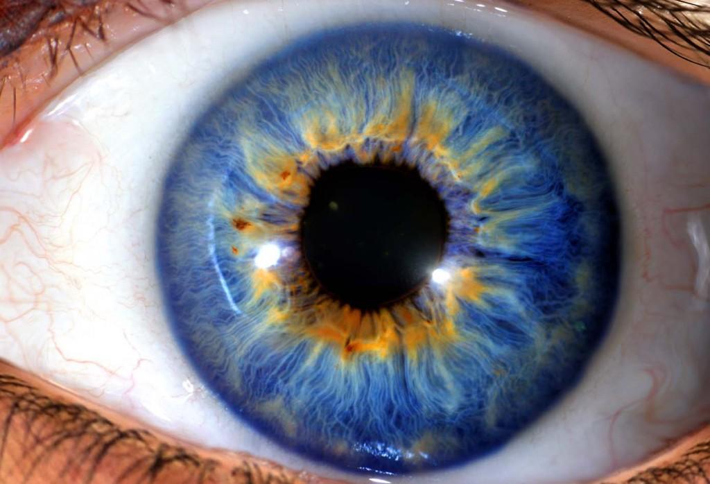iridología (96)