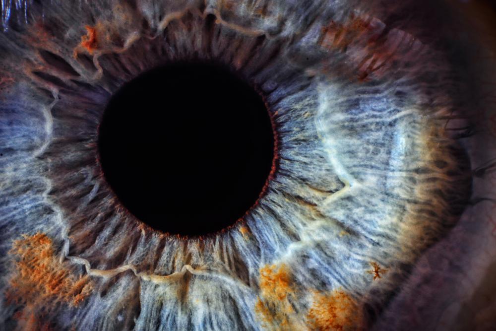 iridología práctica cómo evaluar