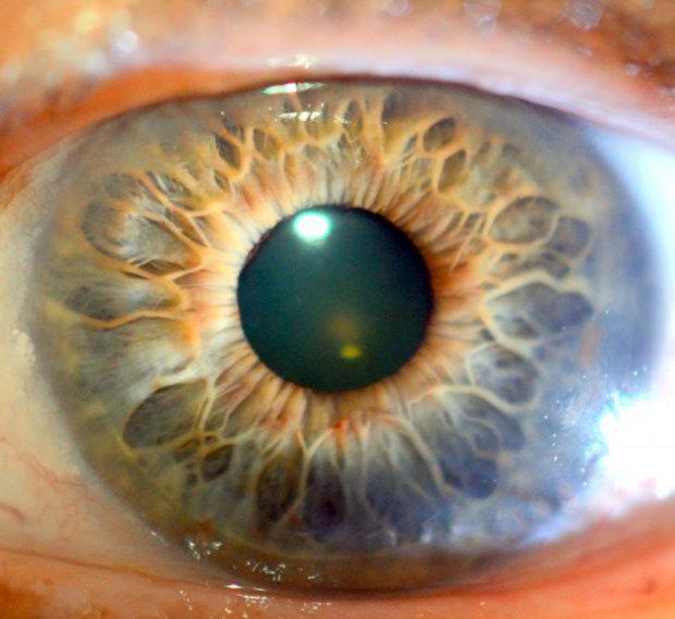 iridología (99)