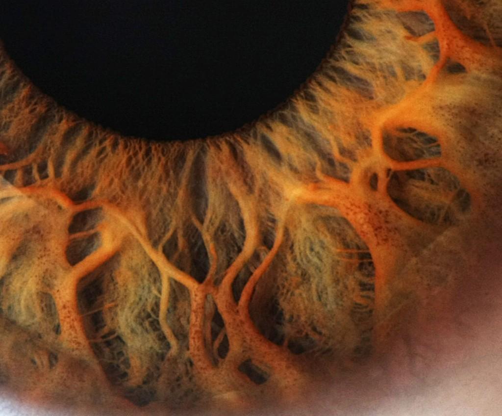 iridología (102)
