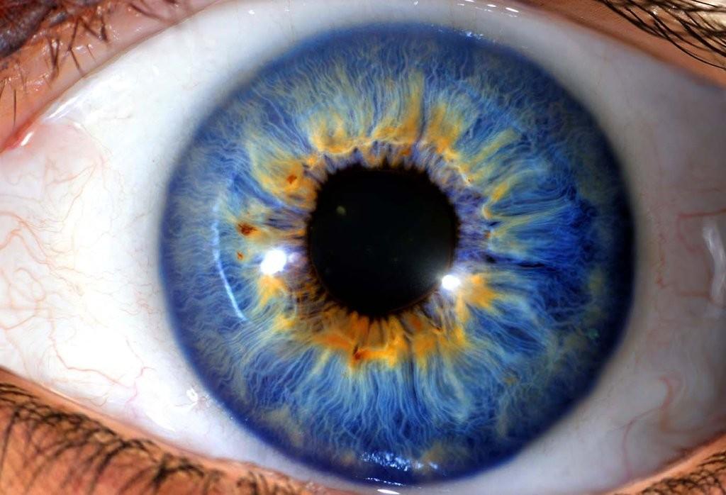 iridología (105)