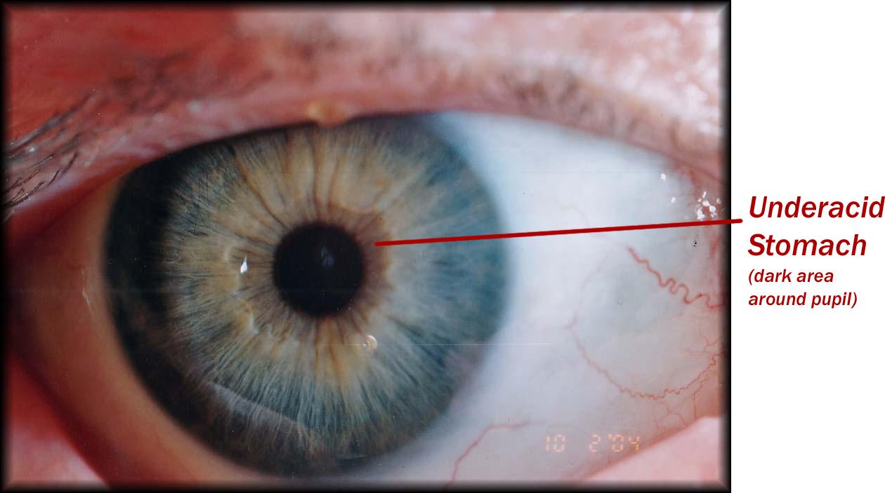 iridología (108)