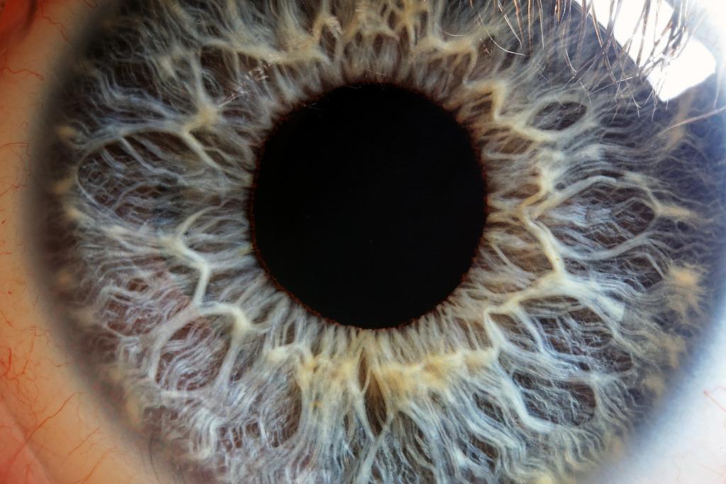 iridología (14)