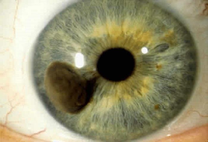 iridología (31)