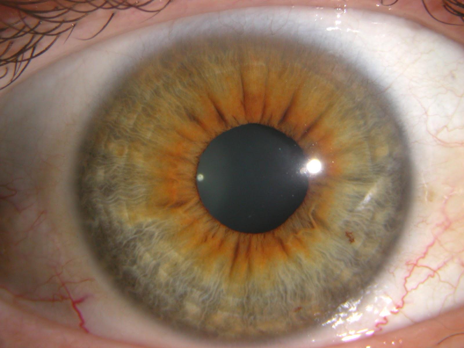 iridología (32)