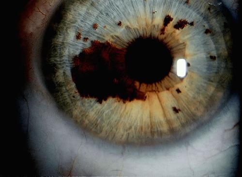 iridología (33)