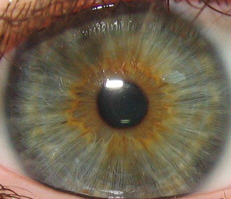 iridología (34)