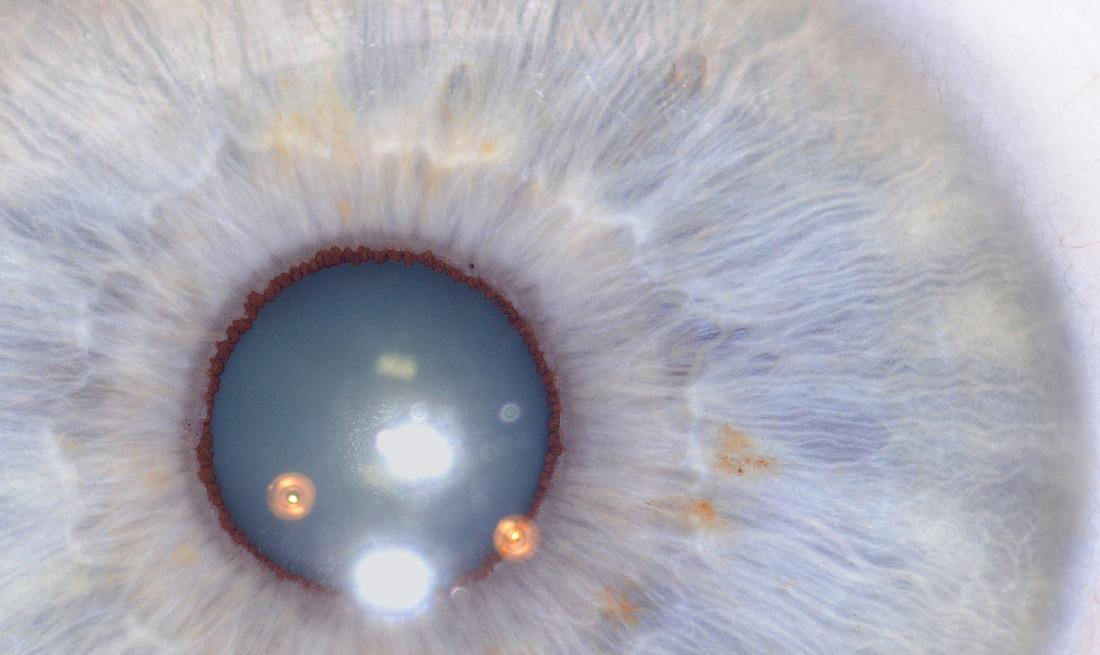 iridología (39)