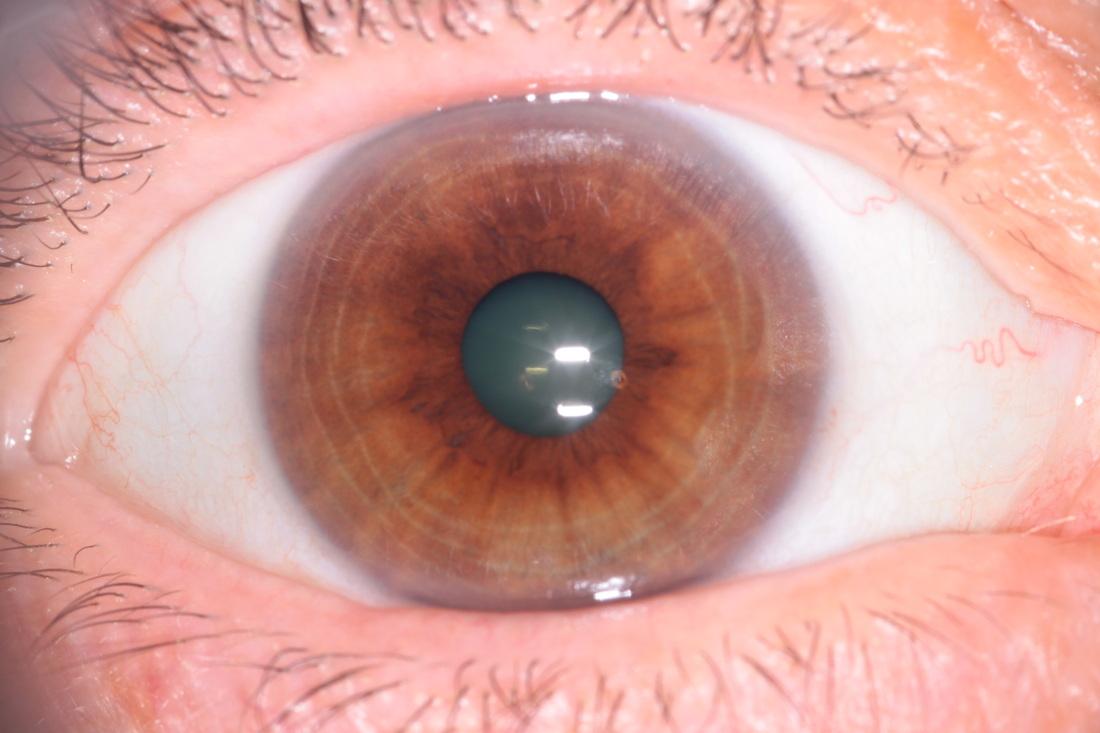 iridología (44)