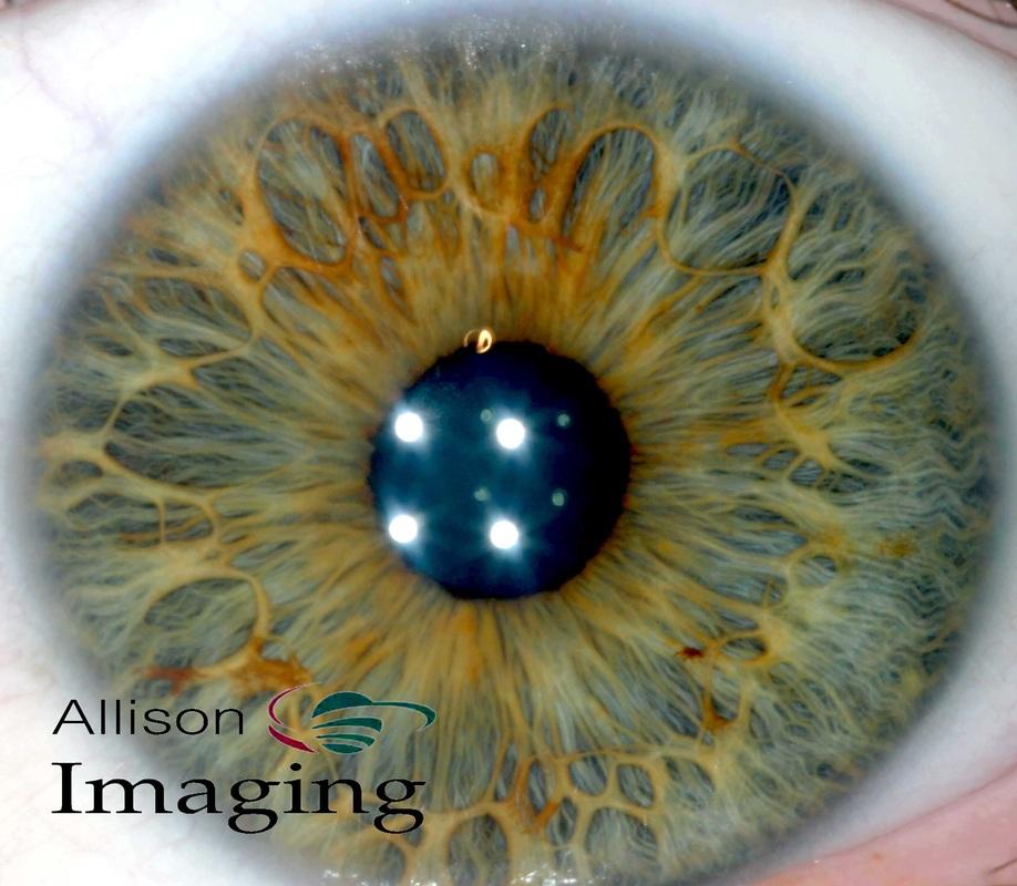 iridología (45)
