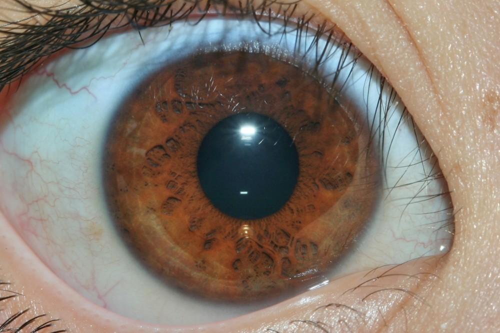 iridología (56)