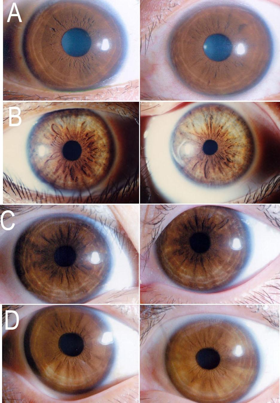 iridología (7)