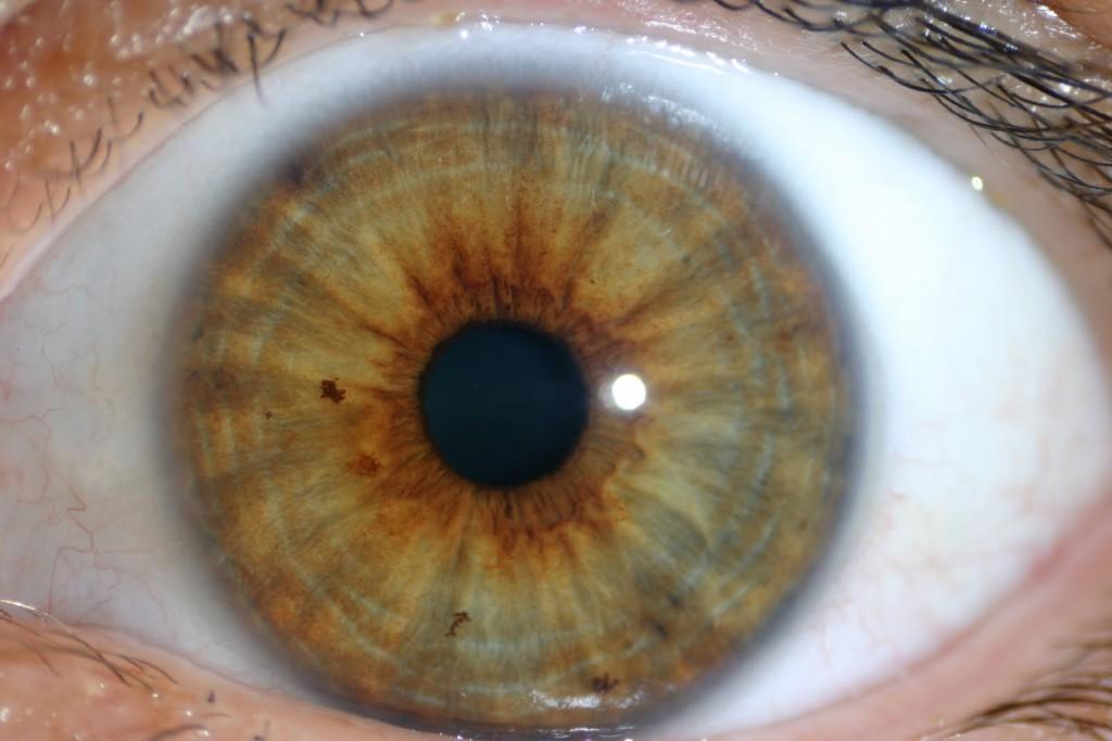 iridología (70)
