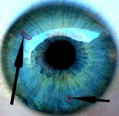 iridología (78)