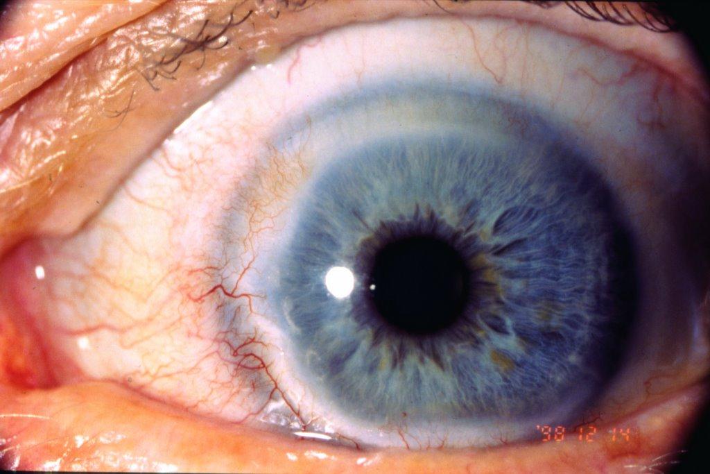 iridología (82)