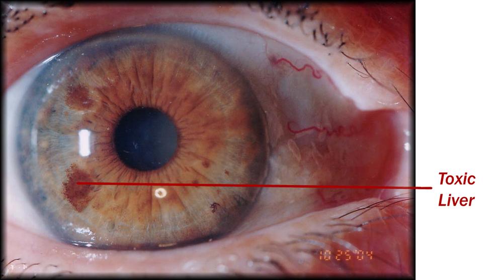 iridología (84)